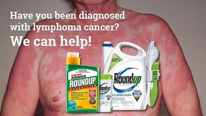 Non-Hodgkin Lymphoma Roundup Lawyer | ELG Law